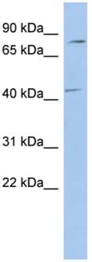 Western blot - P2RX7 antibody (ab94717)