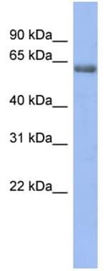 Western blot - GABA Receptor Epsilon antibody (ab94718)