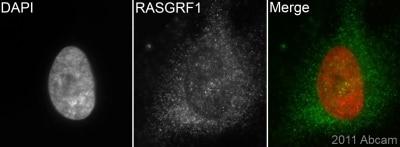 Immunocytochemistry/ Immunofluorescence - RASGRF1 antibody (ab94722)
