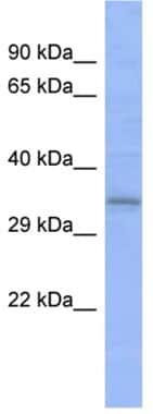 Western blot - C20orf111 antibody (ab94723)