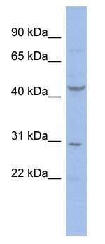 Western blot - Cyclin E2 antibody (ab94724)