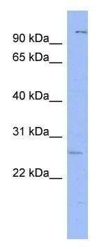 Western blot - Gsh1 antibody (ab94733)