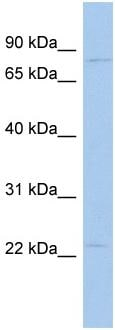 Western blot - HCN3 antibody (ab94755)