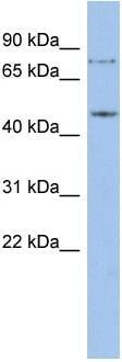 Western blot - ZNF195 antibody (ab94757)