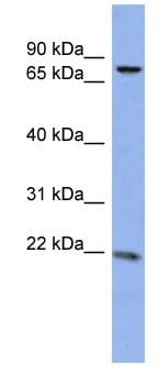 Western blot - ZNF530 antibody (ab94850)