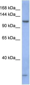 Western blot - PIWIL1 antibody (ab94917)