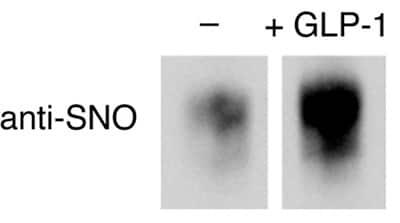Western blot - Anti-S-nitrosocysteine antibody [HY8E12] (ab94930)
