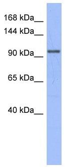 Western blot - MSH4 antibody (ab95096)