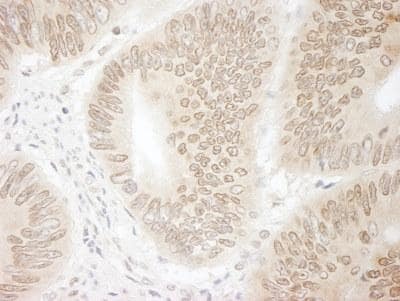 Immunohistochemistry (Formalin/PFA-fixed paraffin-embedded sections) - CDT2 antibody (ab95129)