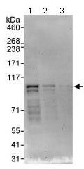 Western blot - NEK4 antibody (ab95176)