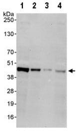 Western blot - CAMK1D antibody (ab95178)