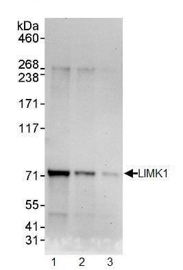 Western blot - LIMK1 antibody (ab95186)