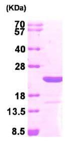 SDS-PAGE - MAX protein (His tag) (ab95309)