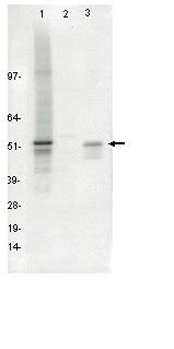 Western blot - FOXA2 antibody [PR-3G1] (ab95327)