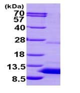 SDS-PAGE - S100P protein (His tag) (ab95488)