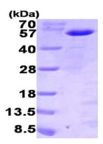 SDS-PAGE - MNDA protein (His tag) (ab95490)
