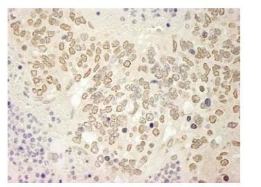 Immunohistochemistry (Formalin/PFA-fixed paraffin-embedded sections) - USP15 antibody (ab95901)