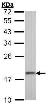 Western blot - Ribosomal protein S10 antibody (ab95944)
