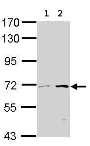Western blot - CROT antibody (ab95953)