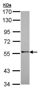 Western blot - RAG2 antibody (ab95955)