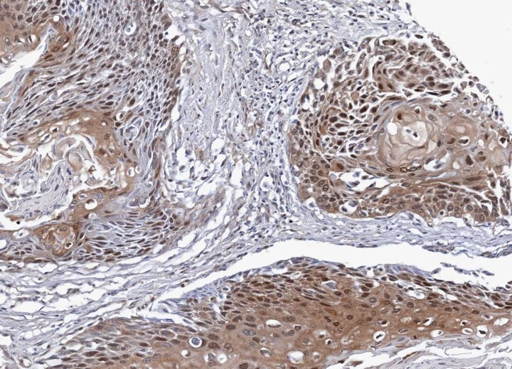 Immunohistochemistry (Formalin/PFA-fixed paraffin-embedded sections) - NSFL1C antibody (ab95963)