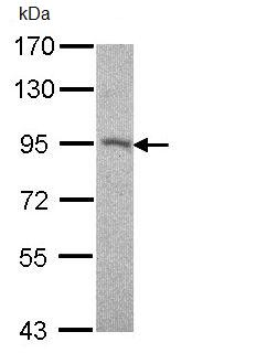 Western blot - Desmocollin 2 antibody (ab95967)
