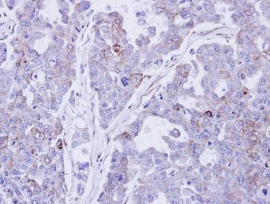 Immunohistochemistry (Formalin/PFA-fixed paraffin-embedded sections) - Desmocollin 2 antibody (ab95967)