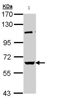 Western blot - RBMY1A1 antibody (ab95974)