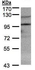 Western blot - TRIM37 antibody (ab95997)