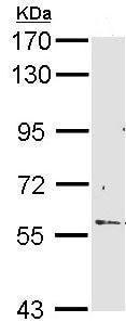 Western blot - RCBTB2 antibody (ab96047)