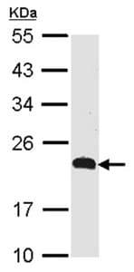 Western blot - CMTM5 antibody (ab96077)