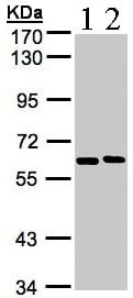 Western blot - NT5C2 antibody (ab96084)
