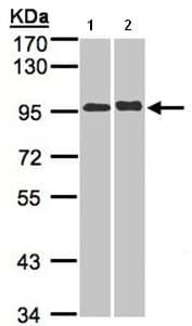 Western blot - IL12RB2 antibody (ab96097)