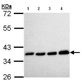 Western blot - Pyrophosphatase 1 antibody (ab96099)