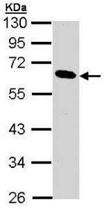 Western blot - Pancreatic Lipase antibody (ab96100)