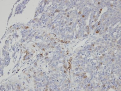 Immunohistochemistry (Formalin/PFA-fixed paraffin-embedded sections) - SIAT4A antibody (ab96129)
