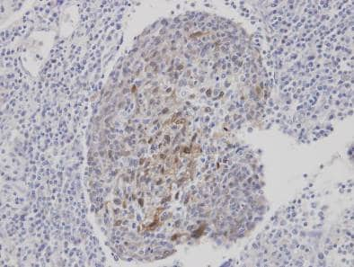 Immunohistochemistry (Formalin/PFA-fixed paraffin-embedded sections) - CLCA1 antibody (ab96131)