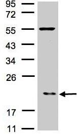 Western blot - p21-ARC antibody (ab96137)