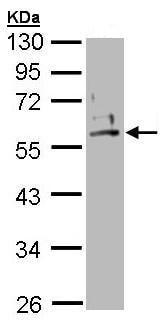 Western blot - Cytokeratin 2e antibody (ab96145)