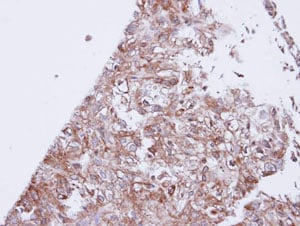 Immunohistochemistry (Formalin/PFA-fixed paraffin-embedded sections) - GIRK1 antibody (ab96168)