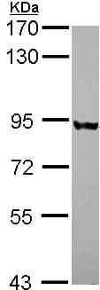 Western blot - PNPT1 antibody (ab96175)