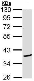Western blot - BCL2L12 antibody (ab96181)