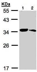 Western blot - MMACHC antibody (ab96195)