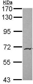 Western blot - Endoglycan antibody (ab96197)