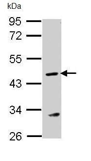 Western blot - Argininosuccinate Lyase antibody (ab96215)