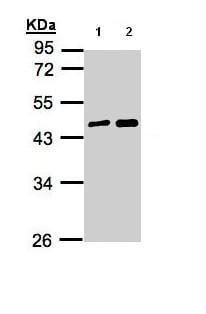 Western blot - MAGEA11 antibody (ab96236)
