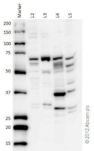Western blot - Anti-CBS antibody (ab96252)
