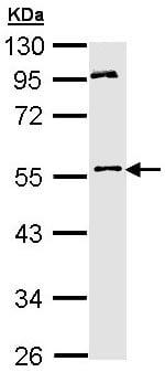 Western blot - MPP1 antibody (ab96253)