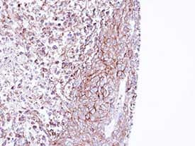 Immunohistochemistry (Formalin/PFA-fixed paraffin-embedded sections) - MPP1 antibody (ab96253)