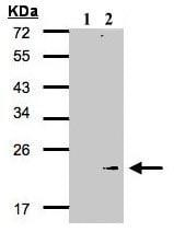 Western blot - Glutathione Peroxidase 7 antibody (ab96257)